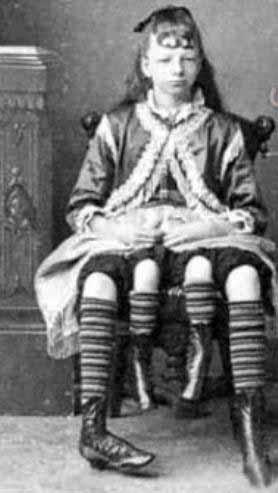 زن چهارپا|www.rahafun.com