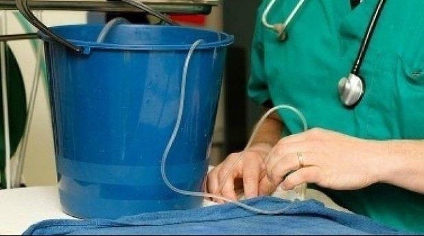 جراحی جالب مغز ماهی با دو سطل آب