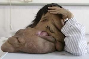 زشت ترین مرد دنیا+عکس|www.rahafun.com