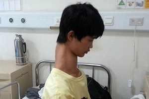 زندگی بسیار سخت پسری با گردن دراز