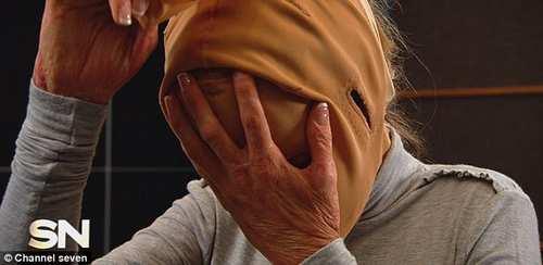 جراحی پلاستیک صورت سوخته یک زن