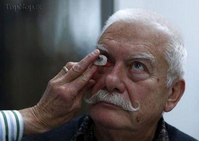عکس مراحل ساخت پروتز چشم