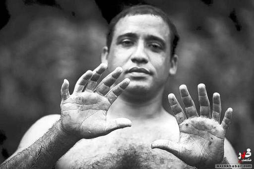 عکس مردی با ۲۴ انگشت