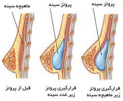 مزایا و معایب پروتز سینه (بررسی کامل پروتز سینه)