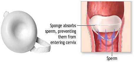 اسفنج پیشگیری از بارداری