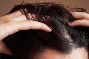 چگونه چربی موهای سرم را کمتر کنم