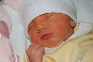 علل زردی نوزادان و راه درمان آن