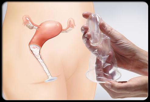 خرید و فروش کاندوم درجه یک با مجوز