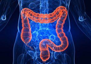 سرطان روده بزرگ چیست و چگونه ایجاد میگردد