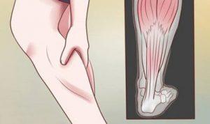 علت گرفتگی عضلات در خواب شبانه و راه پیشگیری آن