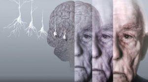 پیشگیری موثر از الزایمر چگونه است