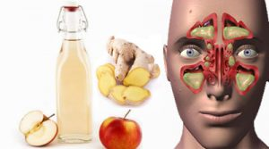 روش گیاهی و طبیعی موثر برای درمان سینوزیت