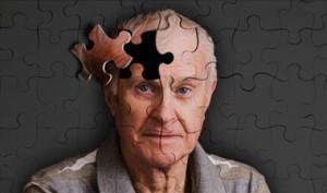چکارکنیم آلزایمر نگیریم؟