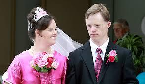 شرایط ازدواج افراد سندرم داون به چه صورت است ؟