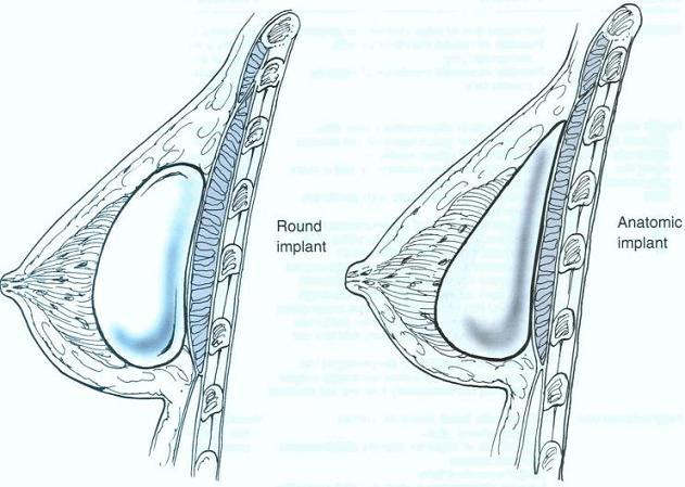 همه چیز درباره جراحی بزرگ کردن سینه