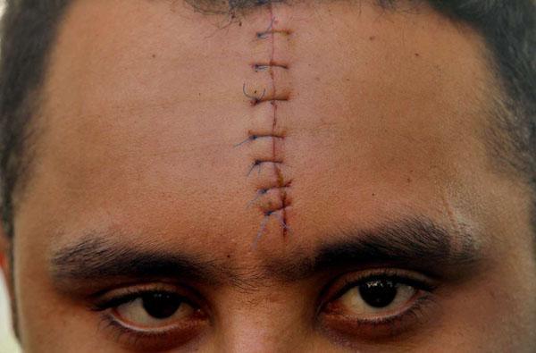 عکسهای خالکوبی و زخمهای اشرار تهران